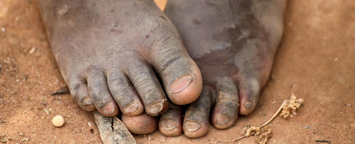 parasitic infections in kenya The risk of pathogenic intestinal parasite infections in millions of people suffer from parasitic infections epidemiological surveys done in kenya's poor.