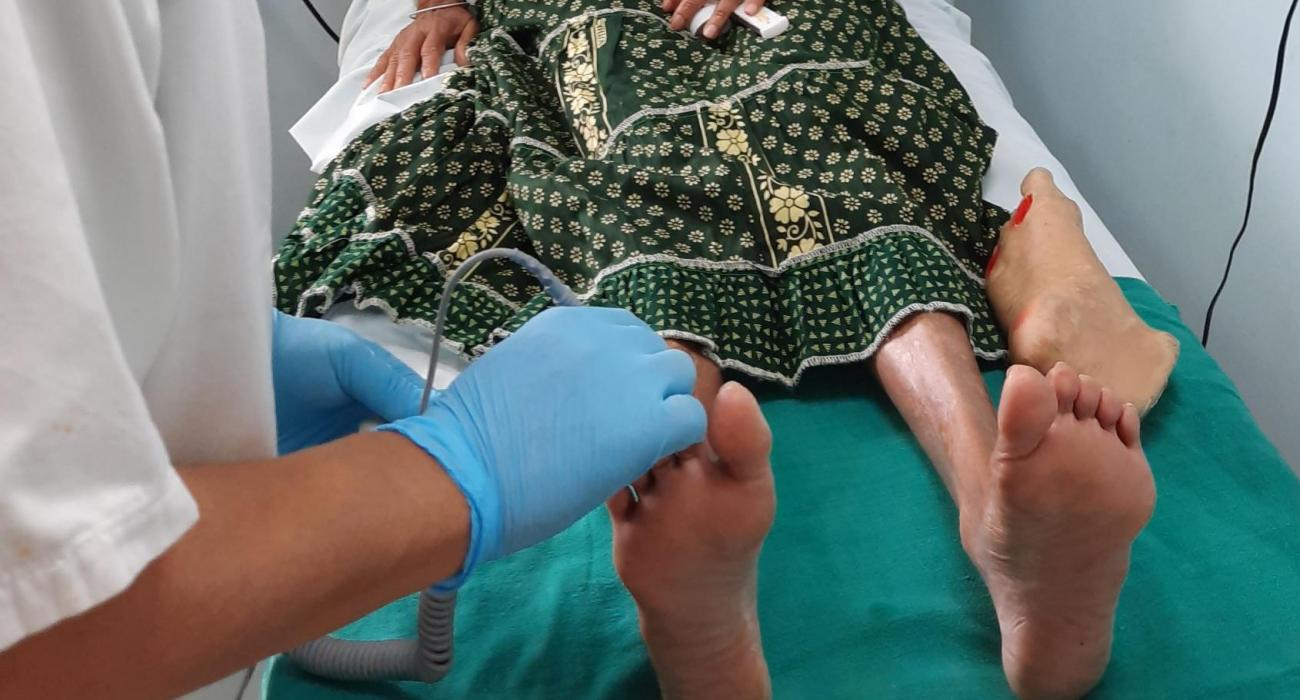 Mauritian clinics help cut diabetic foot amputations