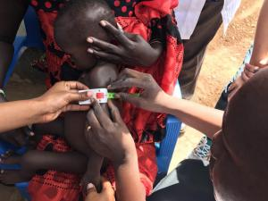 A medical personnel measures a child's middle upper arm circumference (MUAC) to check for malnutrition.  A color-coded MUAC band is a simple tool for screening children for acute malnutrition. Photo: WHO.